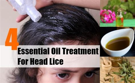 4 Effective Essential Oil Treatment For Head Lice - Head